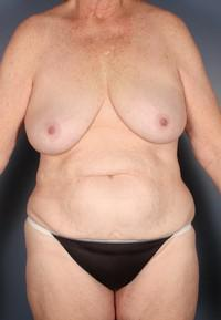 63 Year-Old After Weight Loss, Breast lift with implants, Breast Reduction, Tummy Tuck, etc. before 1394225