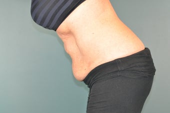 CoolSculpting Treatment to the Lower Abdomen before 1471084