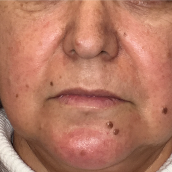 45-54 year old woman treated with Mole Removal