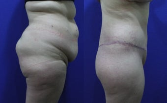 32 Year Old Treated for Abdominal Apron & Sagging Buttocks before 1109112