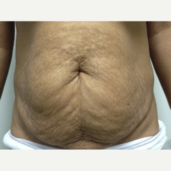 35-44 year old woman treated with Tummy Tuck before 1700101