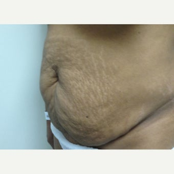 35-44 year old woman treated with Tummy Tuck 1700101