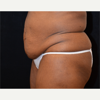 65-74 year old woman treated with Tummy Tuck before 3575529