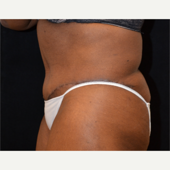 65-74 year old woman treated with Tummy Tuck after 3575529