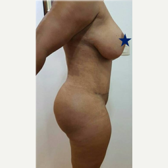 35-44 year old woman treated with Tummy Tuck after 3288385