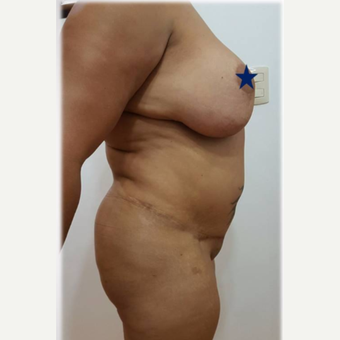 35-44 year old woman treated with Tummy Tuck before 3288385