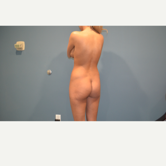 25-34 year old woman treated with Brazilian Butt Lift before 3495914