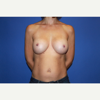 Bilateral Transaxillary Subpectoral Breast Augmentation with Silicone Implants after 3418523