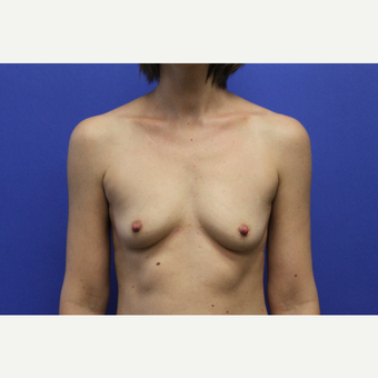 Bilateral Transaxillary Subpectoral Breast Augmentation with Silicone Implants before 3418523