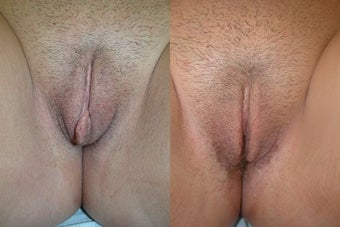 Labiaplasty before 3037810