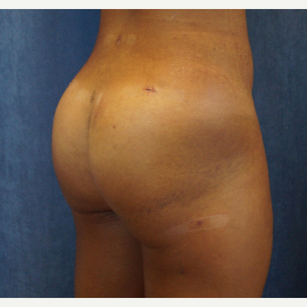 25-34 year old woman treated with Brazilian Butt Lift after 3703687