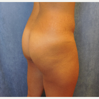 25-34 year old woman treated with Brazilian Butt Lift before 3703687