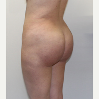 25-34 year old woman treated with Brazilian Butt Lift after 3338462