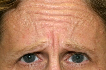 60 year old woman treated for frown lines before 1106650