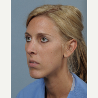 25-34 year old woman treated with Rhinoplasty after 3522223