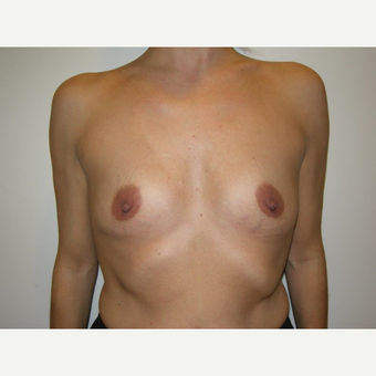 35-44 year old woman treated with Breast Augmentation before 3239256