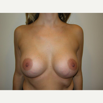 35-44 year old woman treated with Breast Augmentation after 3239256