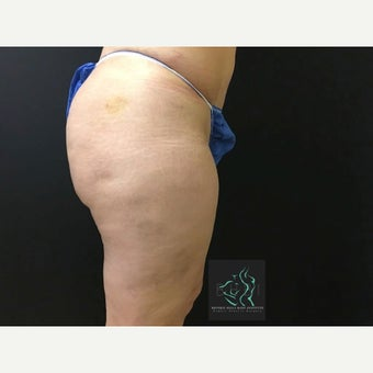35-44 year old woman treated with Cellfina after 2597709