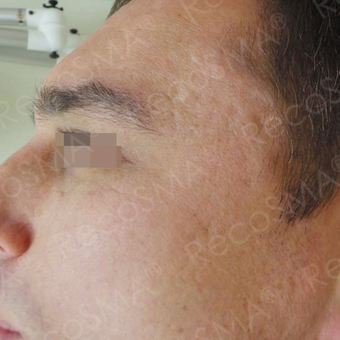 32 year old man with post-acne scars treated with RecoSMA after 2974600
