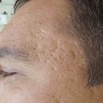 32 year old man with post-acne scars treated with RecoSMA before 2974600