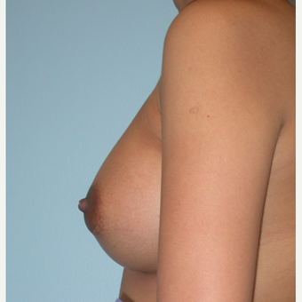 24 year old.  Saline mod profile implants.  300 cc filled to 325 cc.  A to small C after 3294417