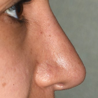 18-24 year old woman treated with Rhinoplasty after 2069230
