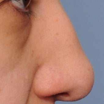 18-24 year old woman treated with Rhinoplasty before 2069230
