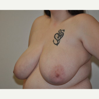 18-24 year old woman treated with Breast Reduction before 3844236