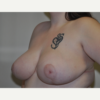 18-24 year old woman treated with Breast Reduction after 3844236