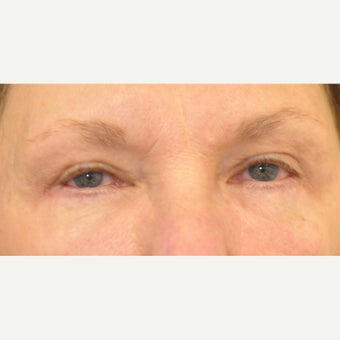 65-74 year old woman treated for obstructing upper eyelids and sagging lower eyelids