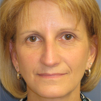 45-54 year old woman treated with Rhinoplasty before 3651692
