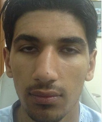 18-24 year old man treated with Rhinoplasty before 2097260