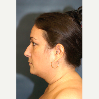 Woman treated with Liposuction of the neck before 2762494