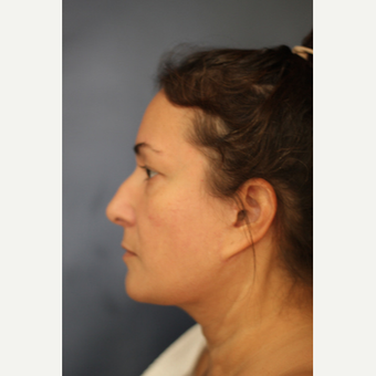 Woman treated with Liposuction of the neck after 2762494