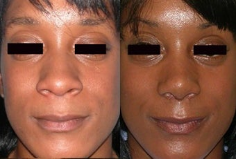 Non Caucasian Rhinoplasty - Narrowing Base Width and Increasing Tip Definition
