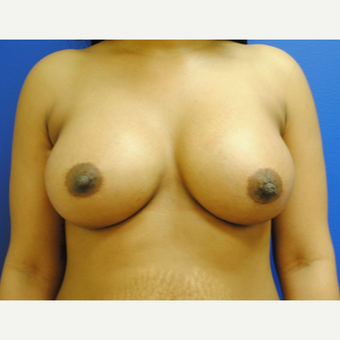 18-24 year old woman treated with Breast Augmentation after 3299817