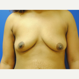 18-24 year old woman treated with Breast Augmentation before 3299817