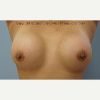 45-54 year old woman treated with Breast Implants after 3376091