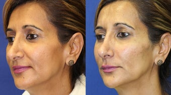 52yo, Filler Injections: 1.5cc Radiesse to cheeks, 1cc Juvederm to Nasolabial folds, marionette lines after 1288921