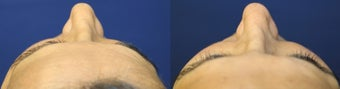 52yo, Filler Injections: 1.5cc Radiesse to cheeks, 1cc Juvederm to Nasolabial folds, marionette lines 1288921
