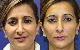 52yo, Filler Injections: 1.5cc Radiesse to cheeks, 1cc Juvederm to Nasolabial folds, marionette lines before 1288921