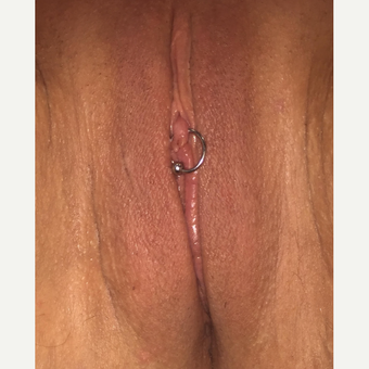 45-54 year old woman treated with Labiaplasty after 3542183