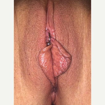 45-54 year old woman treated with Labiaplasty before 3542183