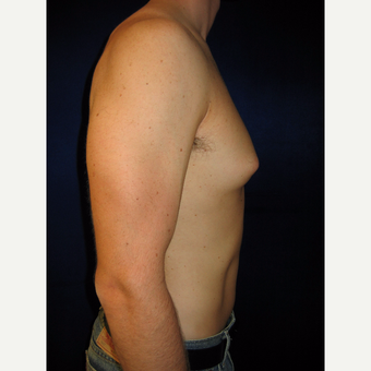 25-34 year old man treated with Male Breast Reduction before 3765966