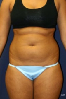 25-34 year old woman treated with Liposuction before 1670076