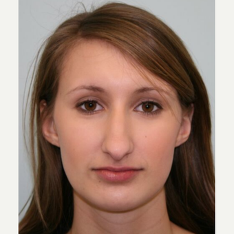 18-24 year old woman treated with Rhinoplasty before 3066760
