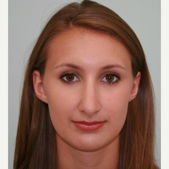 18-24 year old woman treated with Rhinoplasty after 3066760