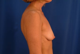 Breast augmentation with lift before 385416