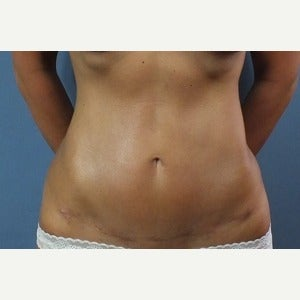 35-44 year old woman treated with Tummy Tuck after 2028473