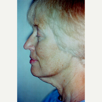 55-64 year old woman treated with Neck Lift before 3764481